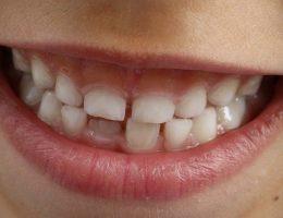 Faut il retirer les dents de lait?