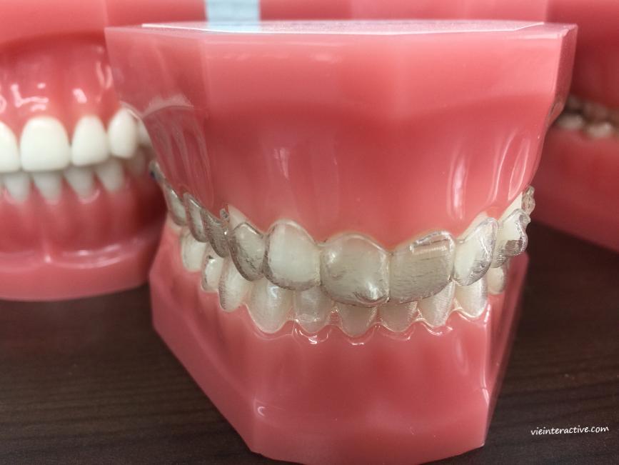 Appareil dentaire: gouttière