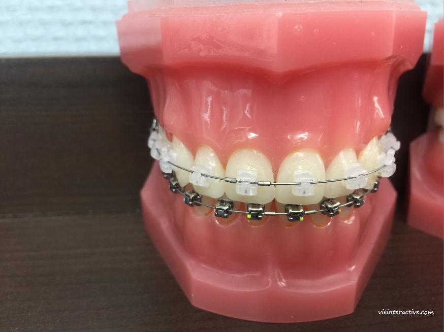 Appareil dentaire en céramique